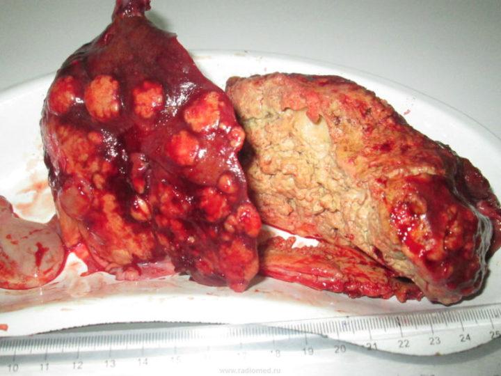 Альвеококктоз печени