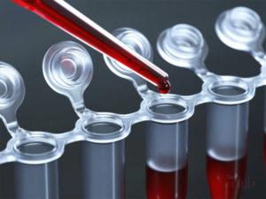 Анализ крови на глисты у детей и взрослых