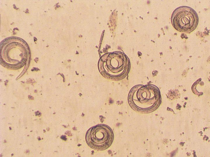 trichianella spiralis