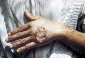 Как заражаются лейшманиями: симптомы и лечение лейшманиоза