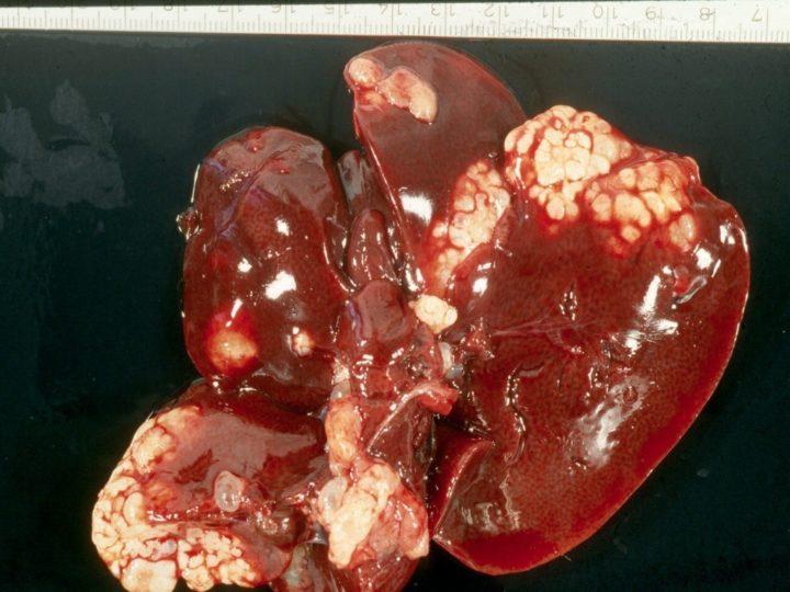 Эхинококктоз